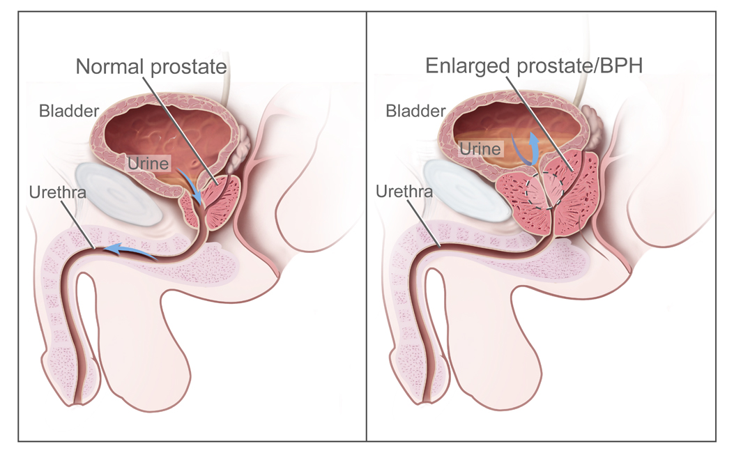 CDR462221 benign prostatic hyperplasia